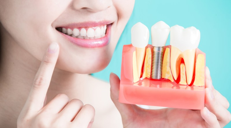 How to Whiten Natural Teeth Together with Implants