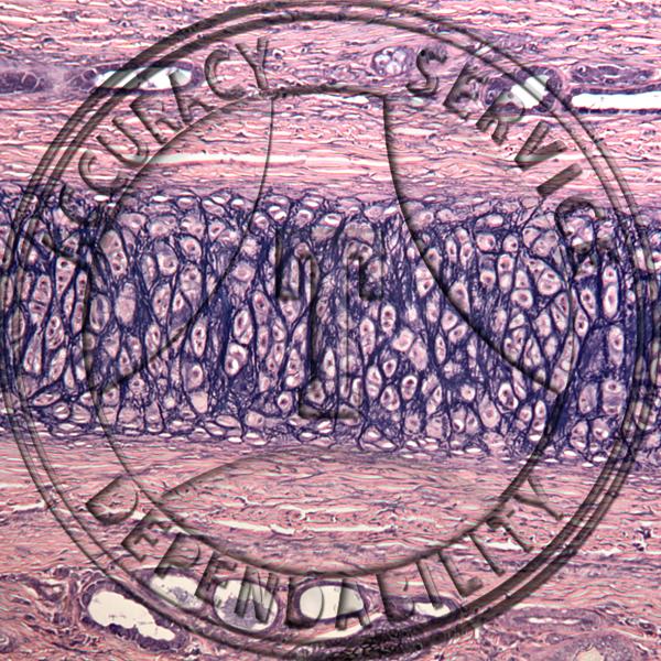 Cartilage Verhoeff S Elastic Tissue Stain Prepared Microscope Slide