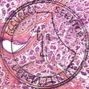 Mammary Cancer Prepared Microscope Slide