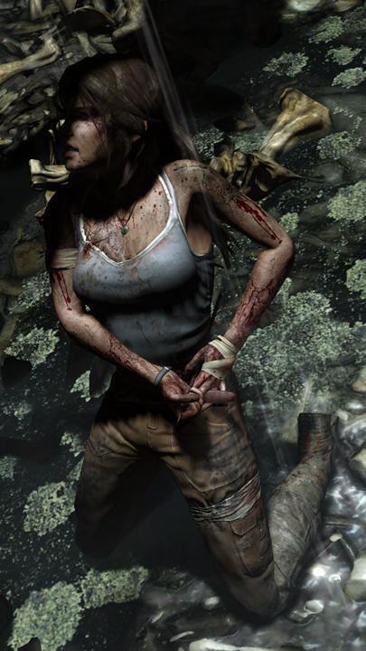 Lara-Injured - Tribe Online Magazin