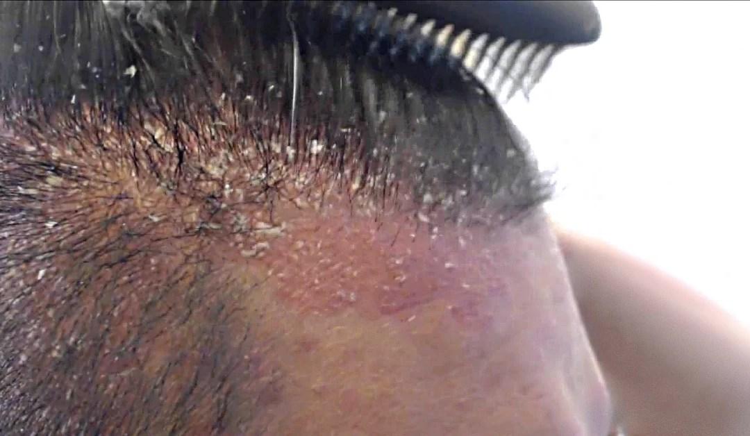 trattamento per dermatite seborroica
