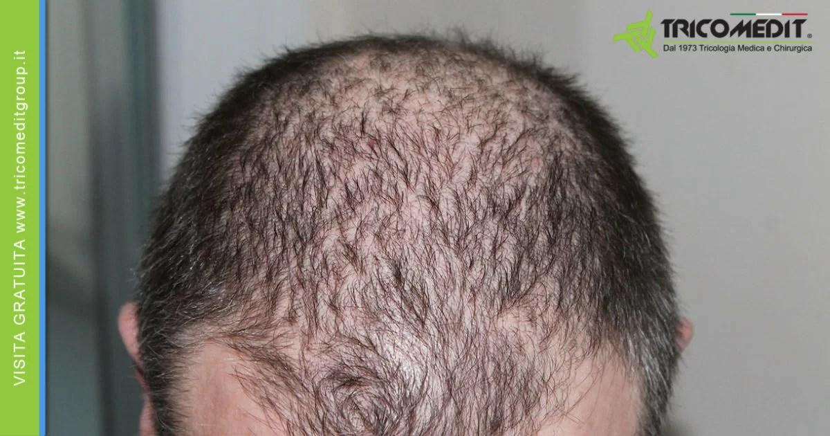 cure per alopecia androgenetica