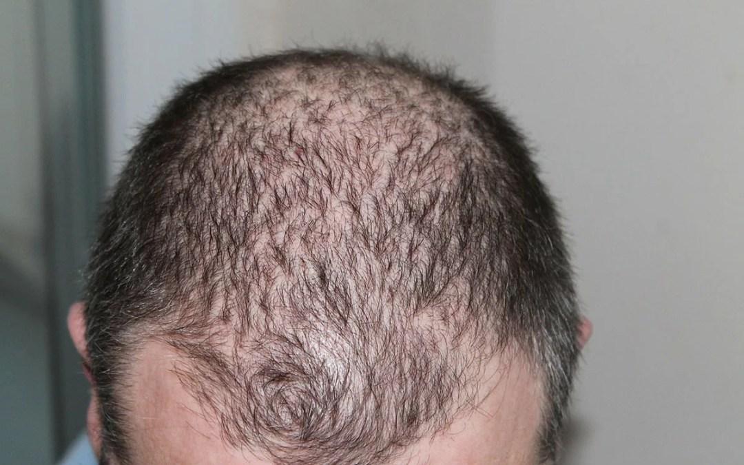 Alopecia androgenetica: come riconoscerla e come curarla