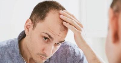 Stempiatura dei capelli nell'uomo