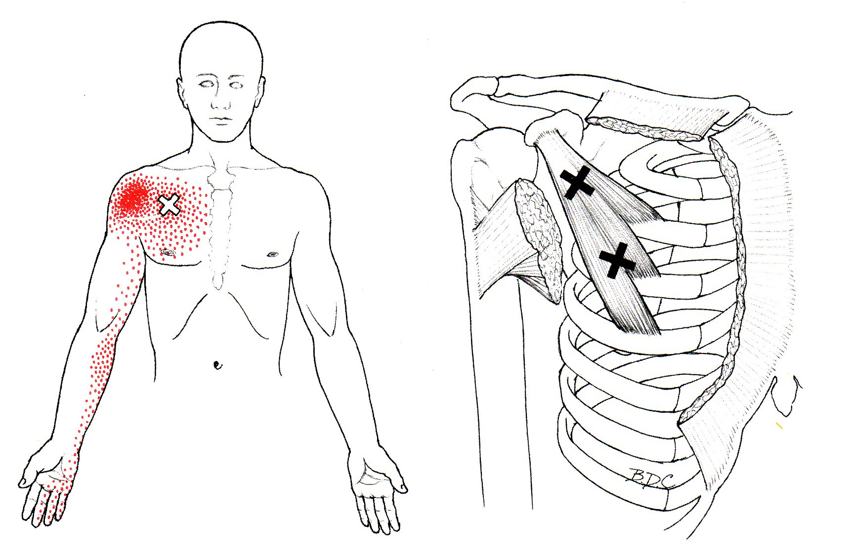 Hurne Chiropractic
