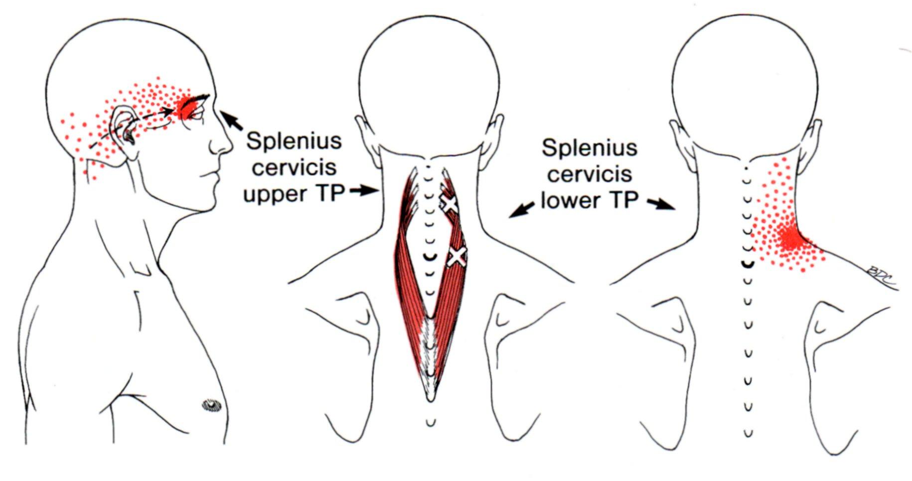 Splenius Cervicis