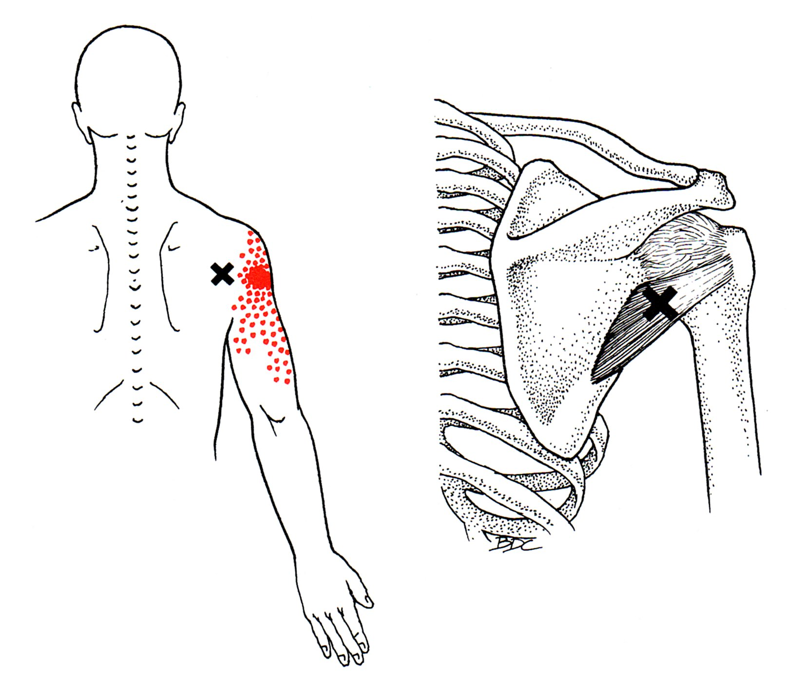 Sports Massage For Pain Weakness When Lifting Your Arm