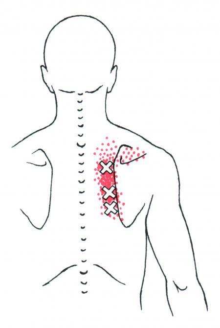 ont i ryggen mellan skulderbladen