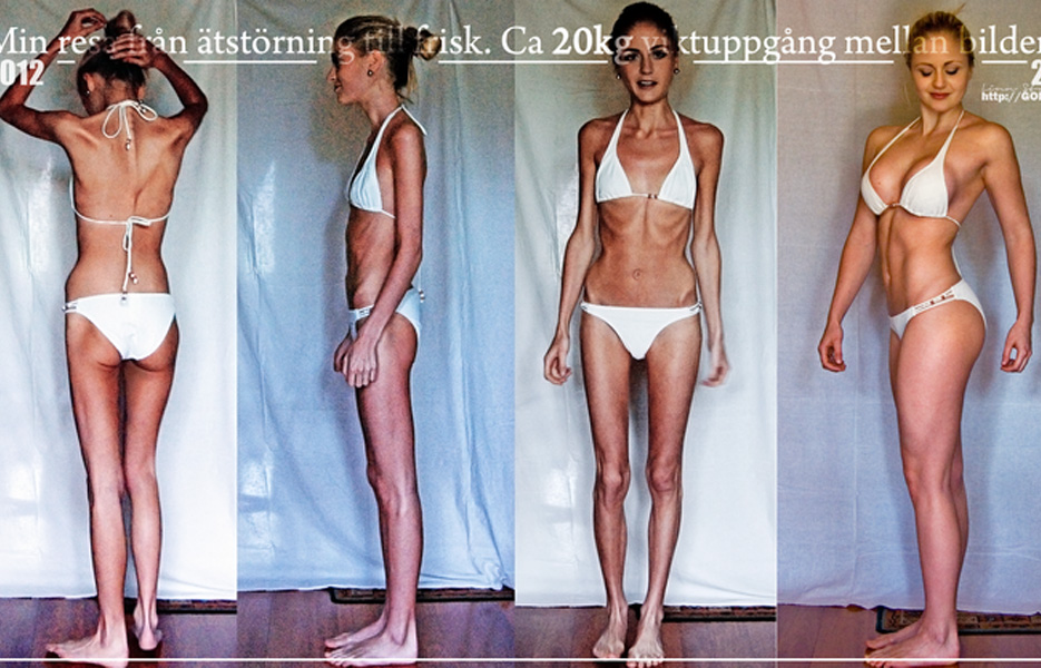 anorexia before and after tumblr 27 insane weight loss