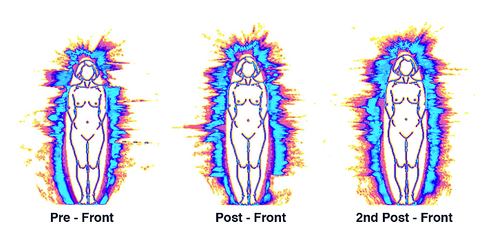 11-Pre-Post-2nd-Aura-Fronts1