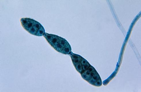 Alternaria sp.- Loài nấm gây bệnh thối đầu cành trên thanh long