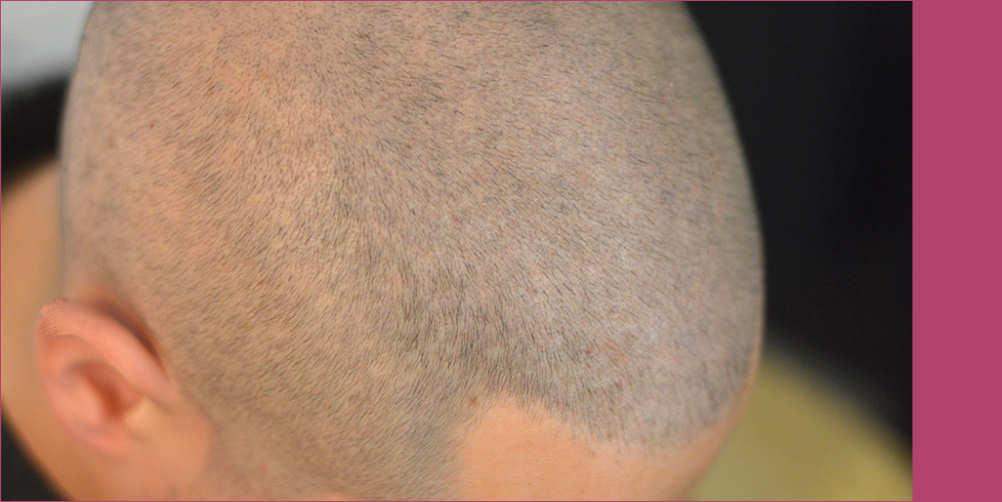 tatuaggio capelli quanto costa