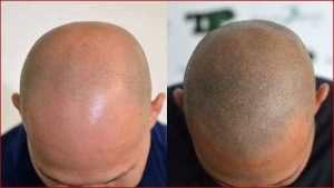 tricopigmentazione Siena