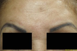 after-frontalis