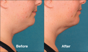 Kybella Treatment in Wilson, NC