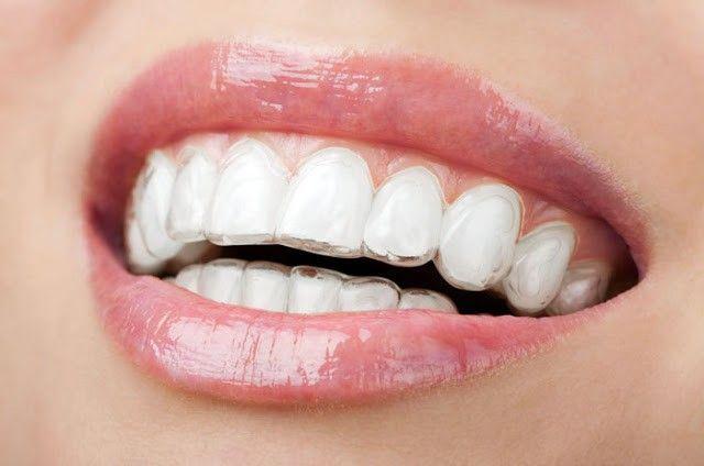 Invisalign para unos dientes perfectos