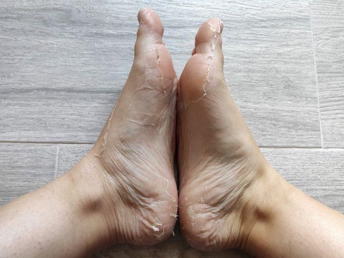 calcetines peeling iroha nature