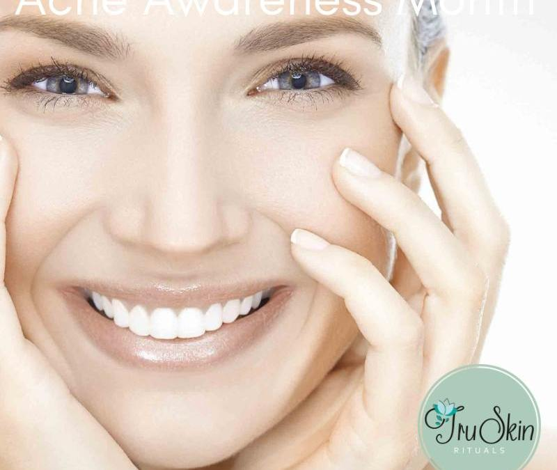 Acne Awareness Month Tips from Tru Skin Rituals