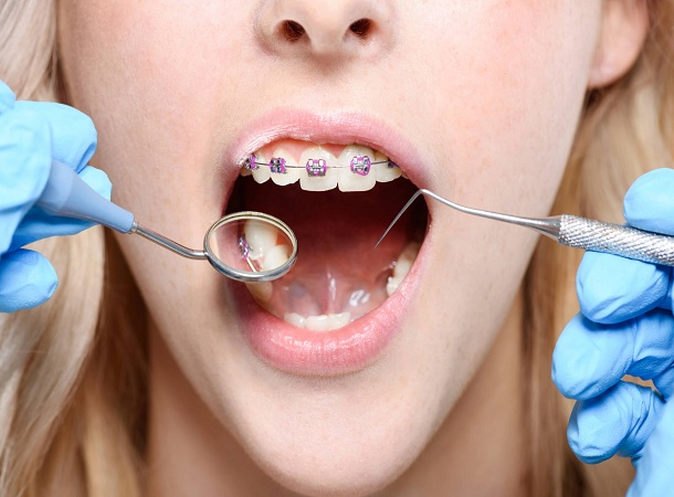 Get The Best Invisalign Done By The Professional Orthodontist