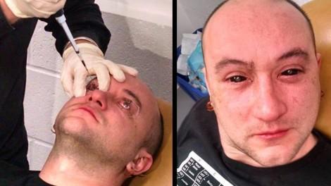 Man Has Night Vision Injected Into His Eyeballs-1