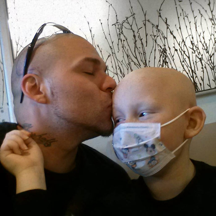 Supportive father gets a tattoo to match his brave young son's brain cancer surgery scar-1