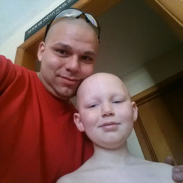 Supportive father gets a tattoo to match his brave young son's brain cancer surgery scar-2