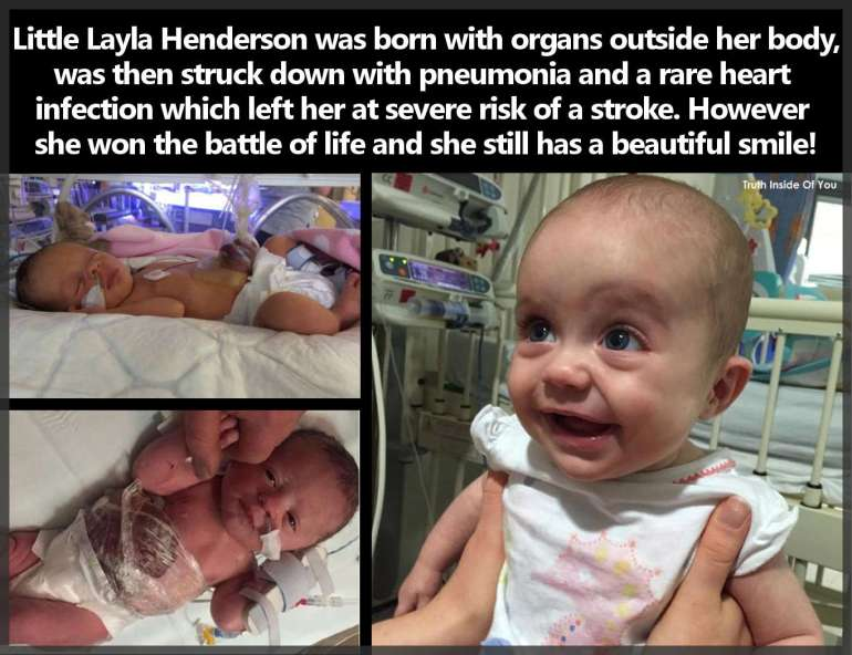 Layla Henderson was born with organs outside her body