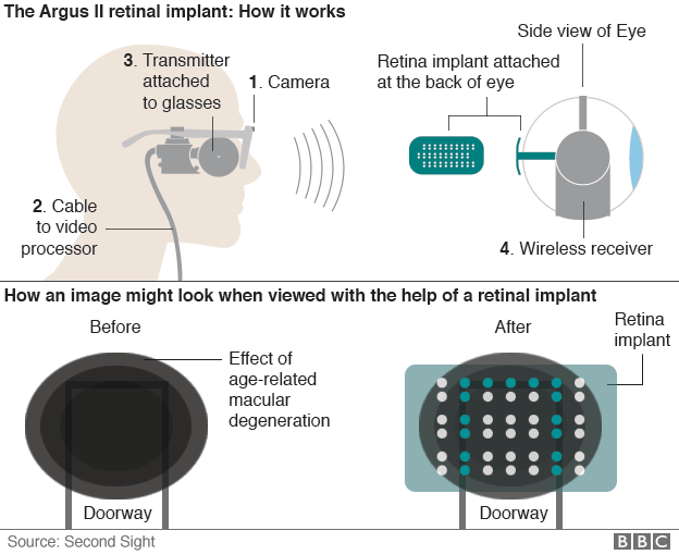 How the Argus II retinal implant operates.