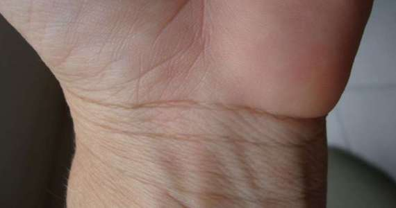 Bracelet Lines On Your Wrist
