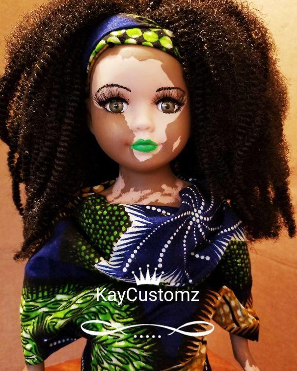 Dolls Vitiligo 1