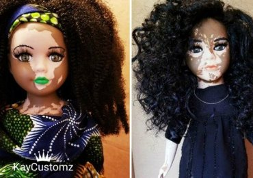 Dolls Vitiligo