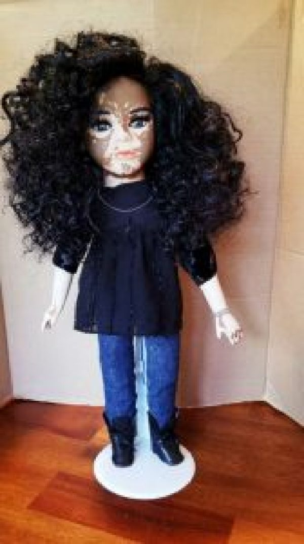 Dolls With Vitiligo-3