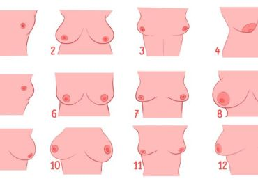 shape of your breasts