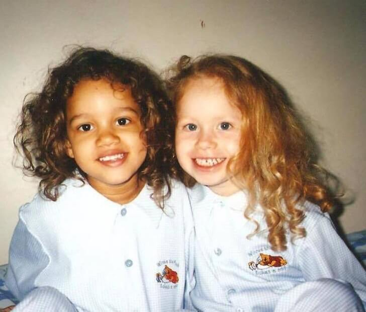 Beautiful Pictures Of The First Twin Sisters With Different Skin Colors Who Are 18 Years Old Today (2)