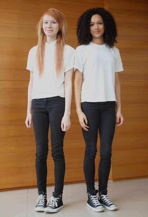 Beautiful Pictures Of The First Twin Sisters With Different Skin Colors Who Are 18 Years Old Today (5)