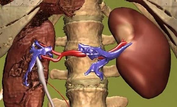 borderline hypertonia magas vérnyomás hatása az agyra