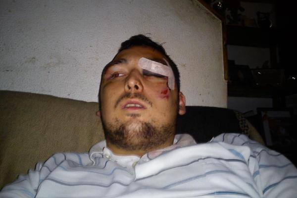 Cerco ao Parlamento: manifestante acusado de partir um vidro acaba espancado pela PSP