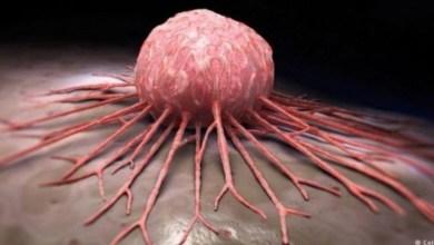 Photo of سبعة أعراض رئيسية للسرطان