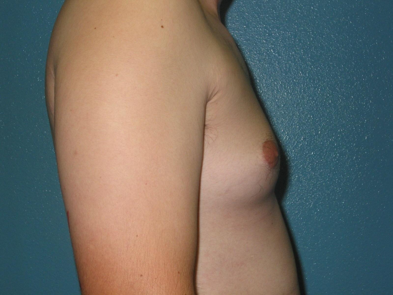 puberty budding breasts puberty budding breasts japan