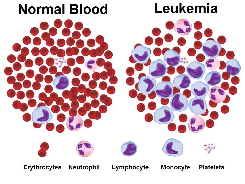 Chronic-Myeloid-Leukemia