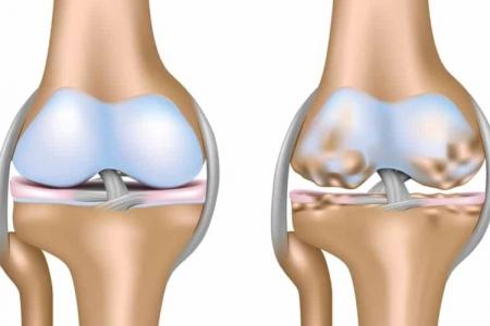 Arthritis-knee