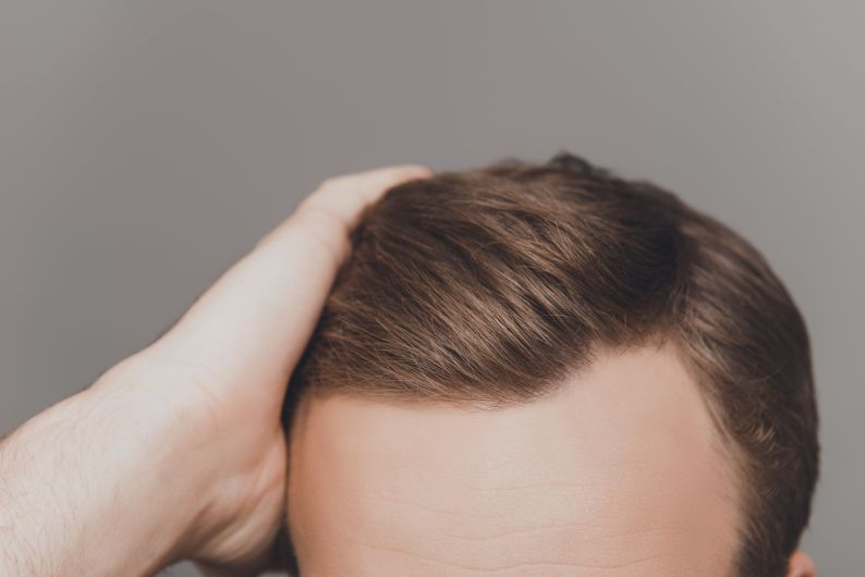 Saç Ekimi Aşamaları