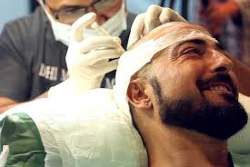 DHI Hair Transplantation Method