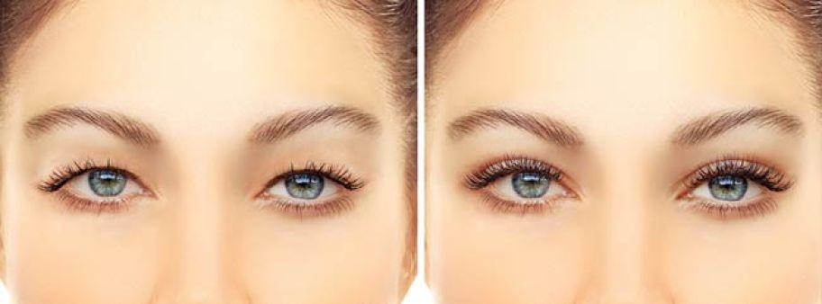 Eyelid Aesthetics (Blepharoplasty)