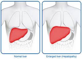 Karaciğer Büyümesi (Hepatomegali)
