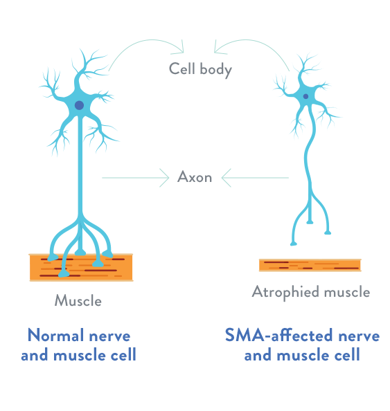 Spinal Muscular Atrophy (SMA)