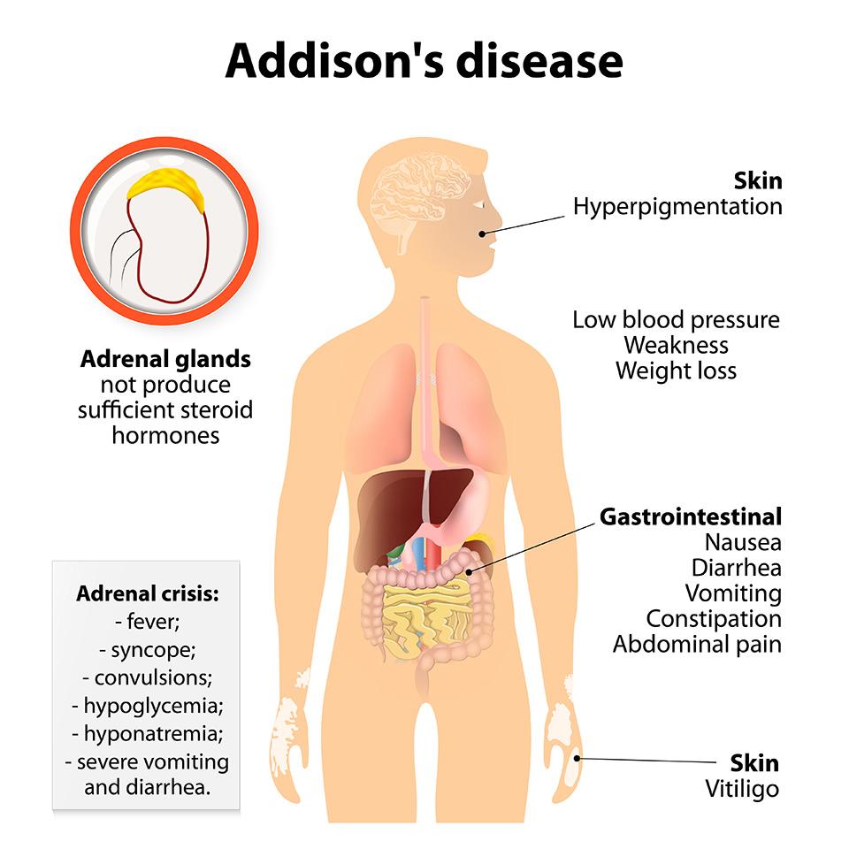 Addison Hastalığı (Hipoadenokortisizm)