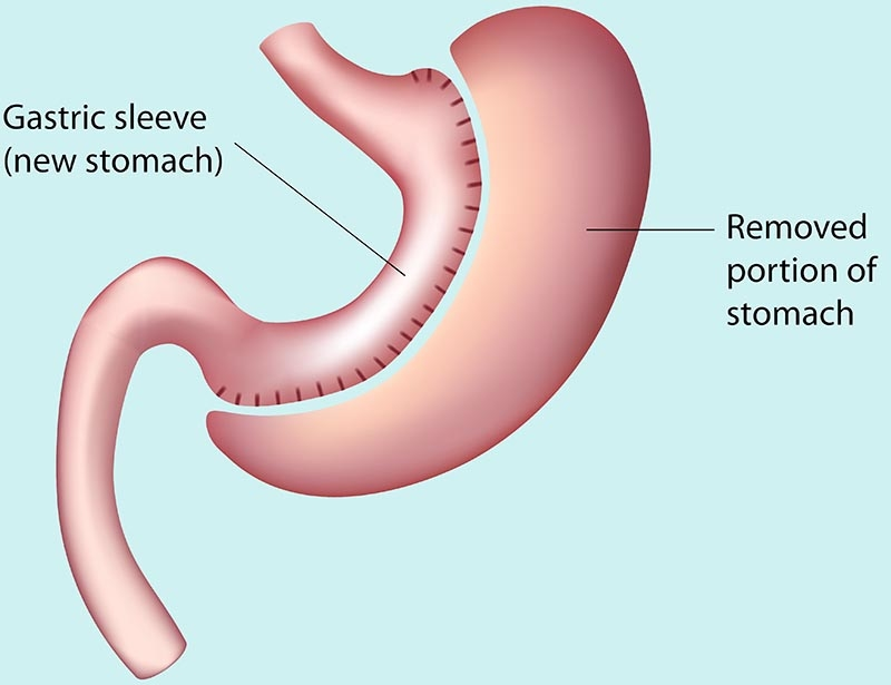 gastric-sleeve-istanbul