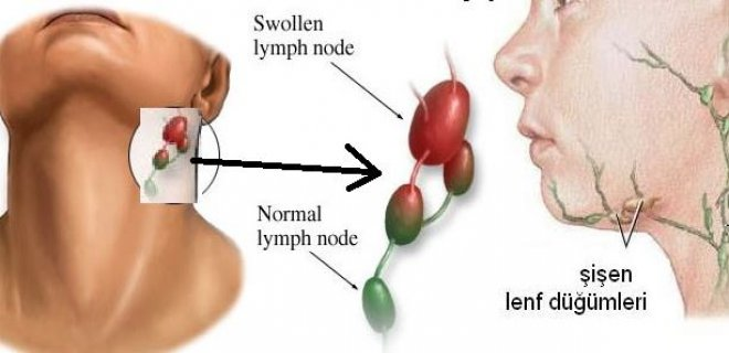 lymphoma lymph cancer