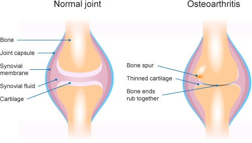 osteoarthritis-treatments